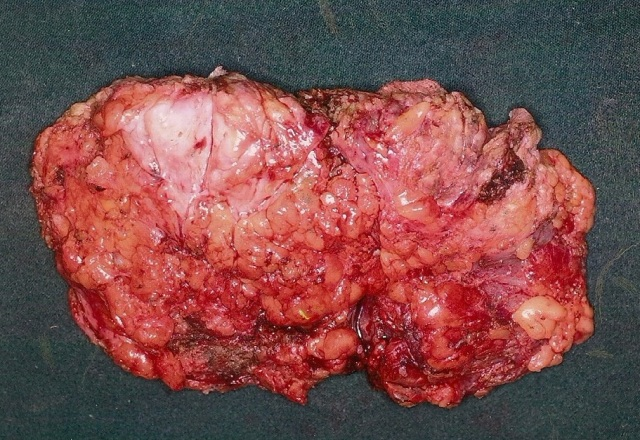 hemangiosarcoma_breast_2005-3